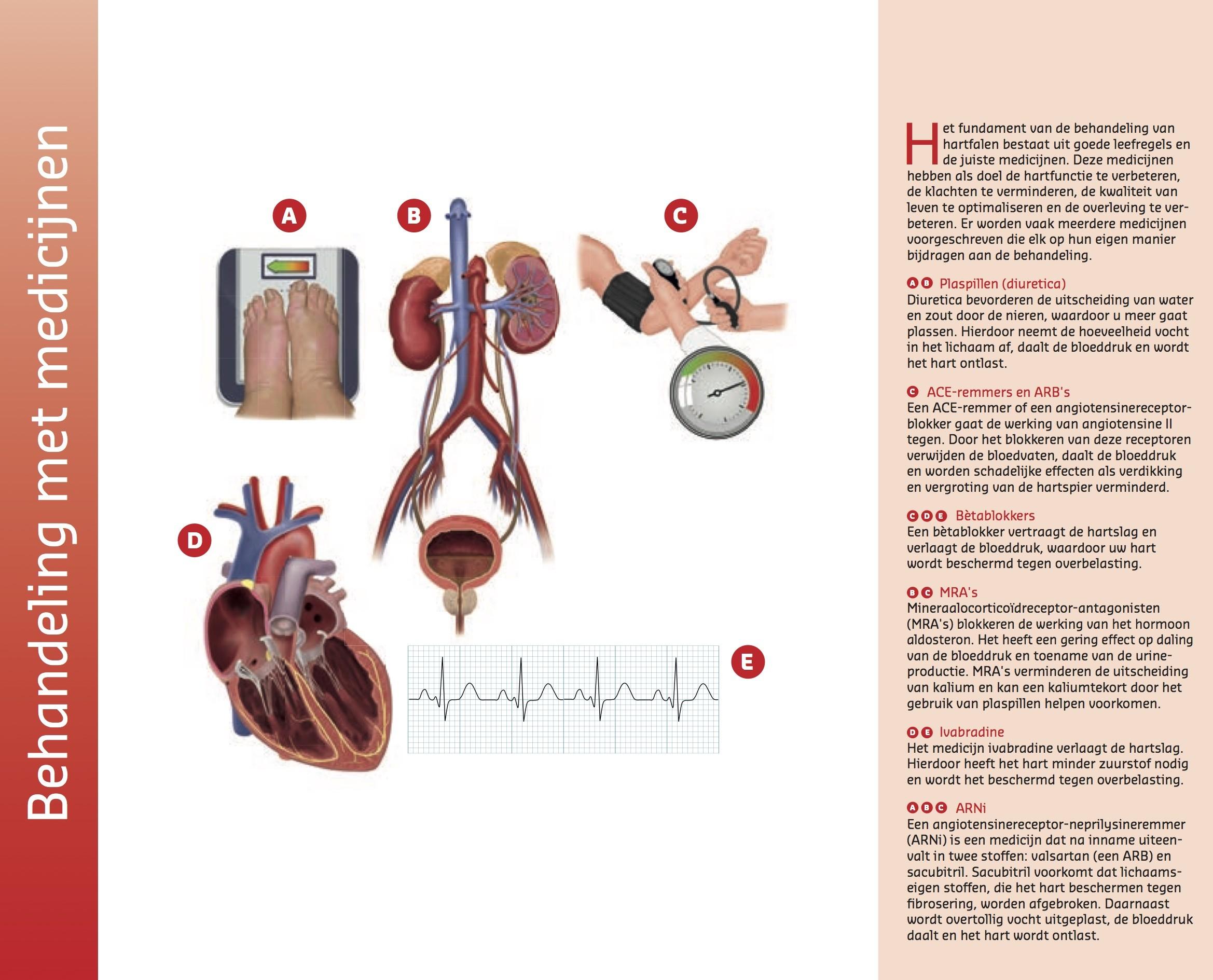 scan van de hartspier