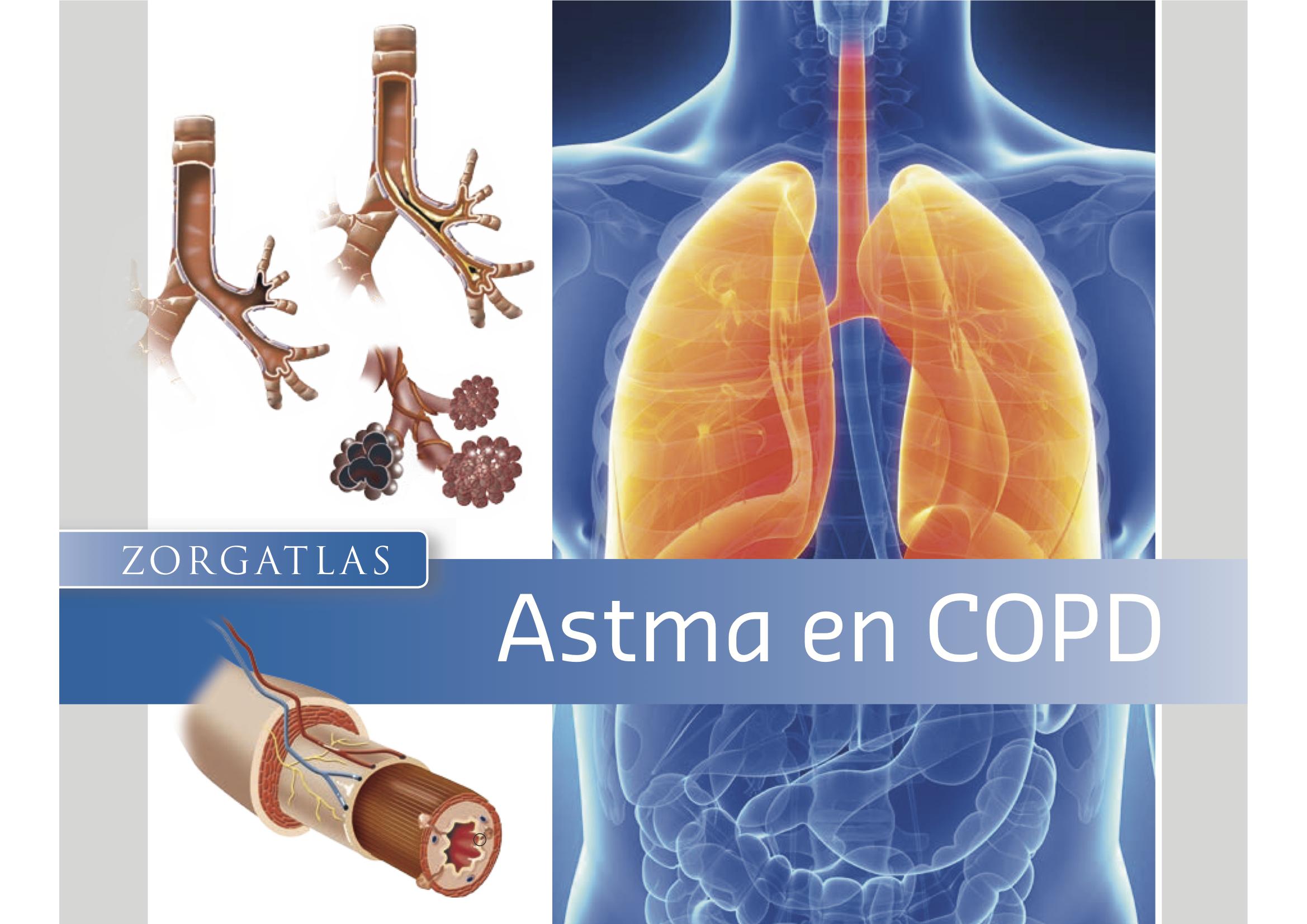 Afbeeldingsresultaat voor copd astma
