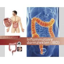 Zorgatlas Inflammatoire darmziekten (IBD)