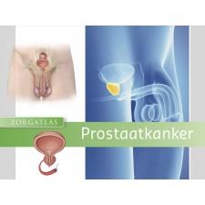Zorgatlas Prostaatkanker