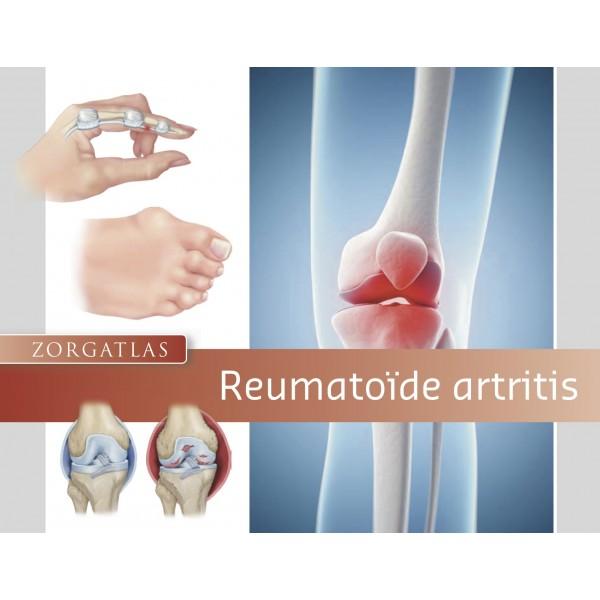 Zorgatlas Reumatoïde Artritis