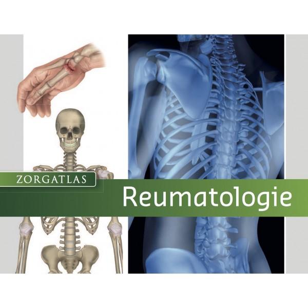 Zorgatlas Reumatologie
