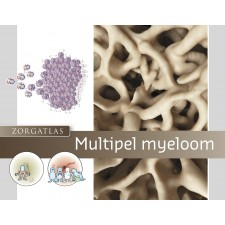 Zorgatlas Multipel myeloom